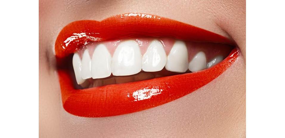 Топ продуктов для отбеливания зубов